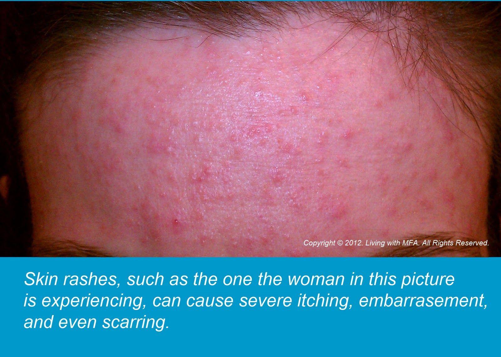 Allergy to eggs: symptoms, prevention, treatment