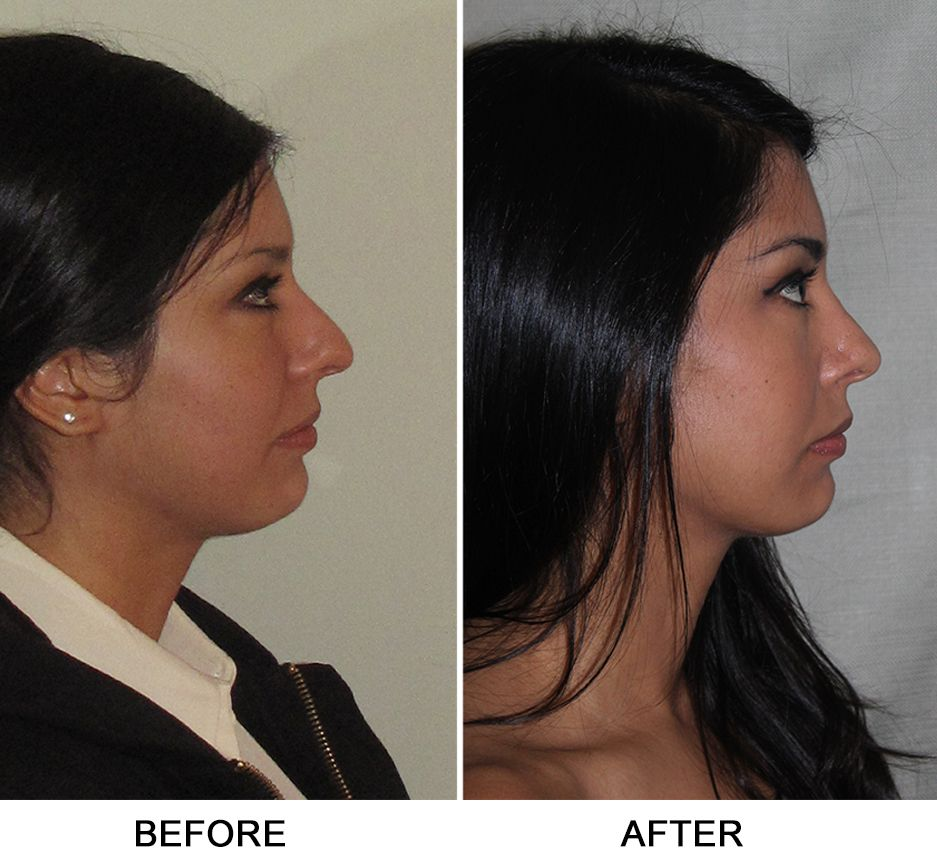 Fractured Nose and Septum, Turbinate Reduction