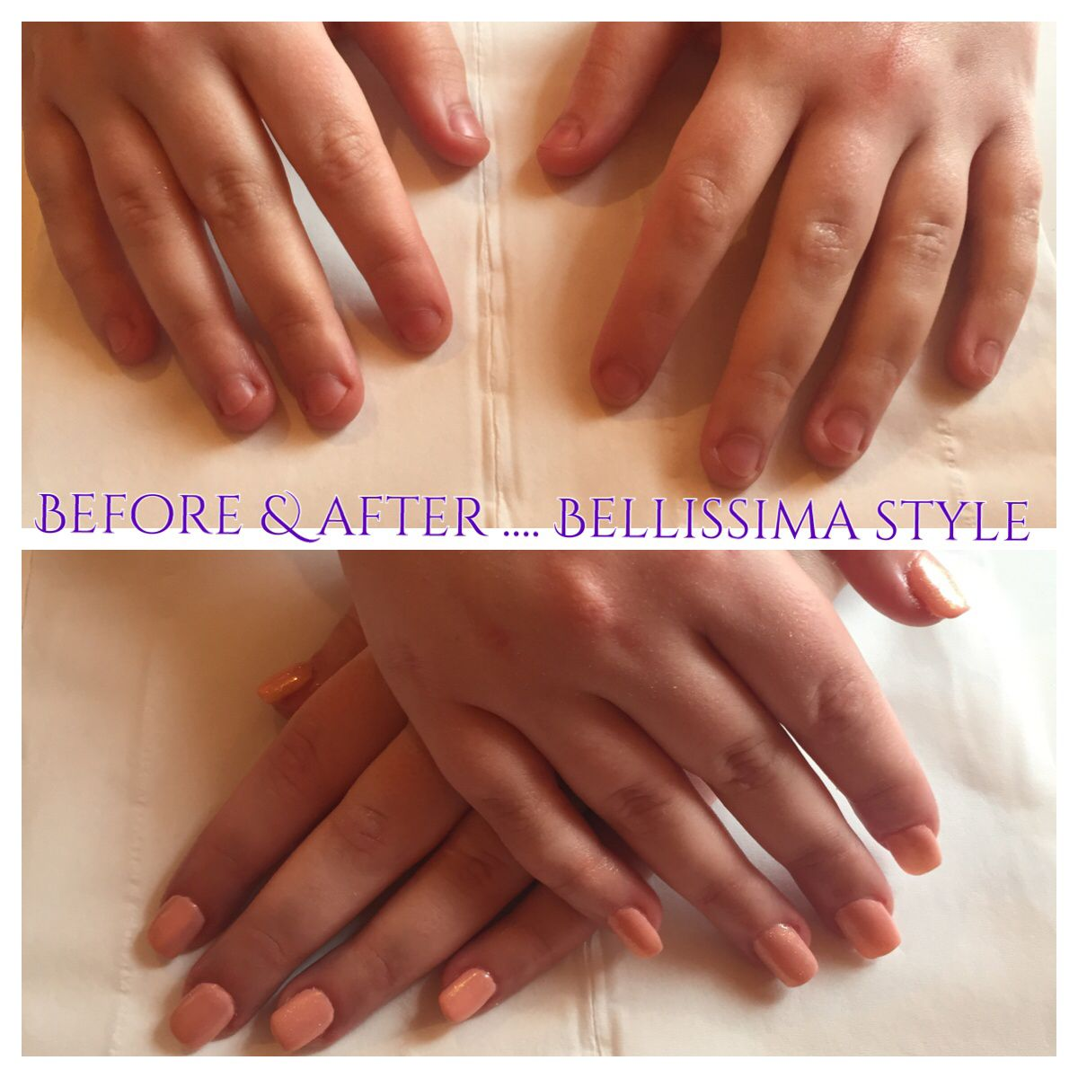 Persistent Nail Biter Before After Cnd Acrylic Sculpt Enhancements With Shellac Manicure To