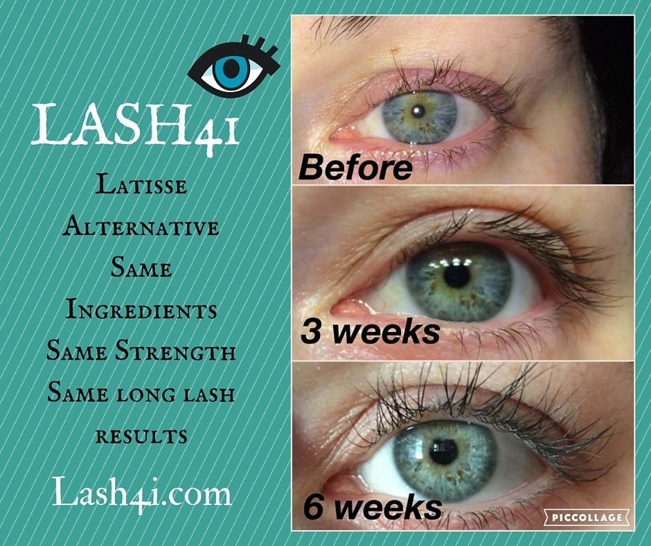 Damage From Lash Extensions Lash4i Will Save The Day One