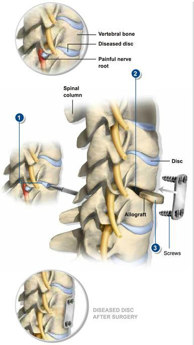 Anterior Cervical Discectomy & Fusion removes a herniated or ...