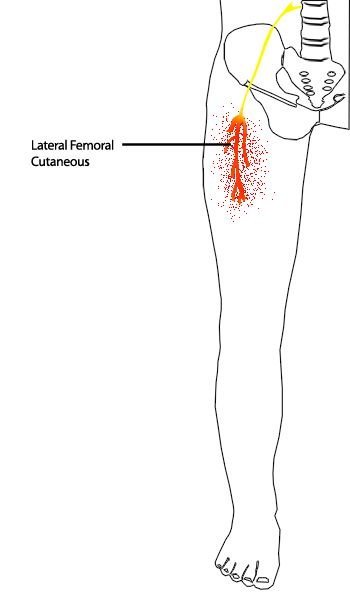 femoral nerve pain symptoms | spinal l1 to l5 | pinterest | pain d, Muscles