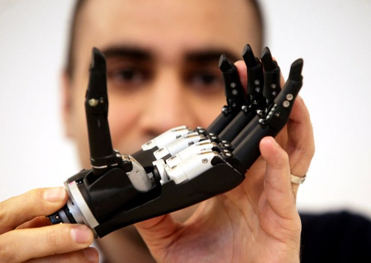 Pictures of the day 24 february 2015 prosthetics