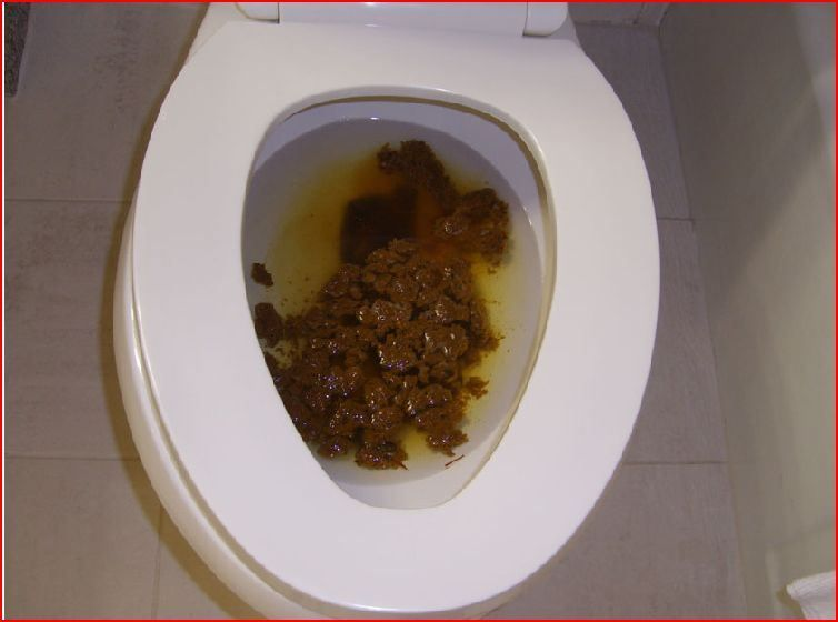 Can not Giant poop in toilet think, that