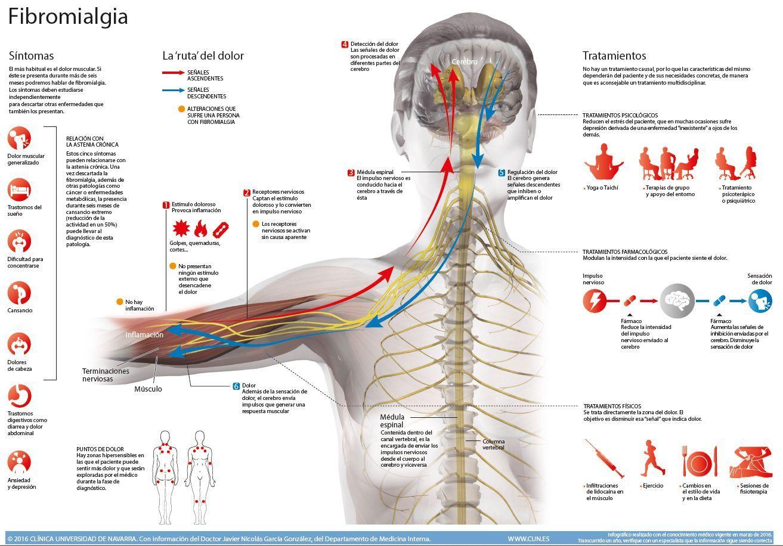 fibromialgia dolor de muñeca y tobillo