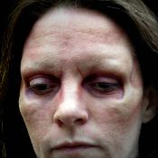 Applied Prosthetic Of Stuart Bray Zombie Brow