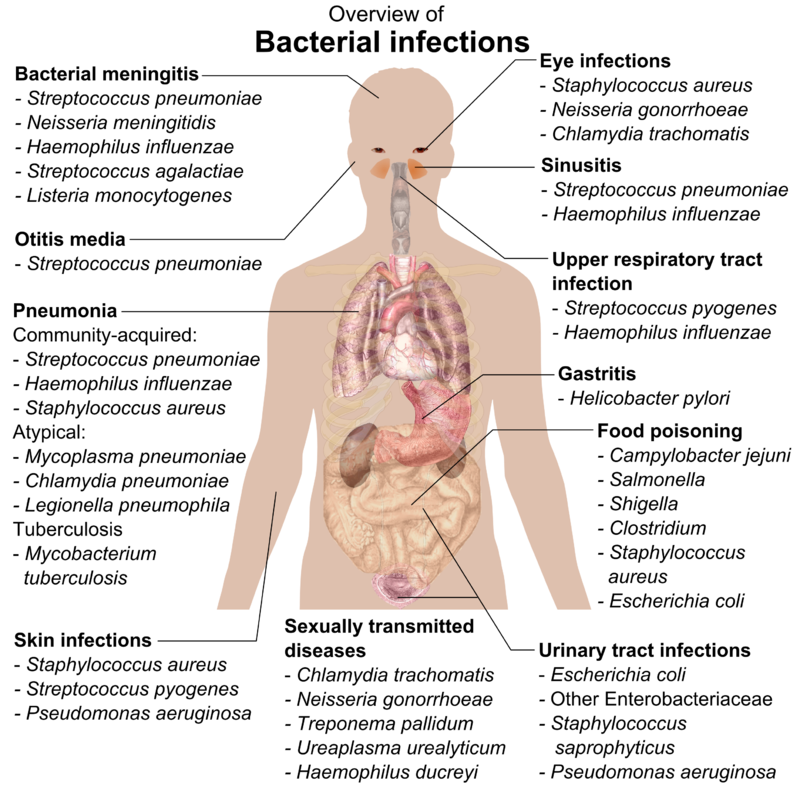 Bacterial infections and involved species - Bacteria - Wikipedia ...