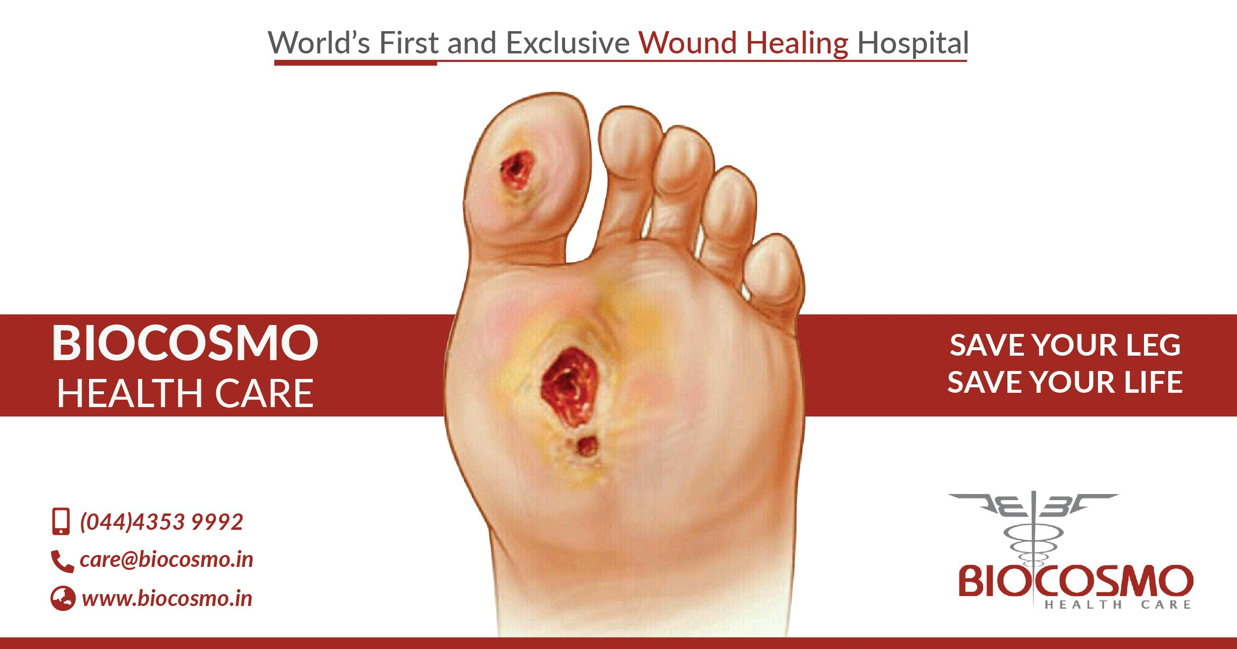 All Type Of Healing Non Healing Wounds Such As Diabetic Non Healing Ulcers Gangrenous Ulcers Venous Ulcers Has Been Success Wound Healing Healing Ulcers
