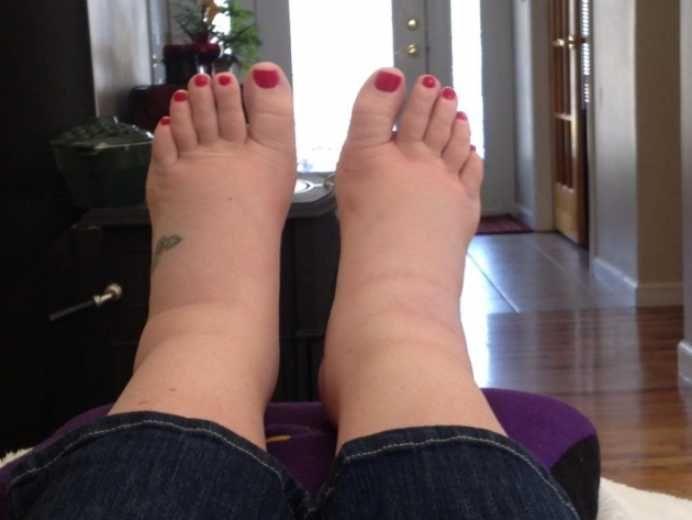 ce ajută la picioarele și picioarele umflate