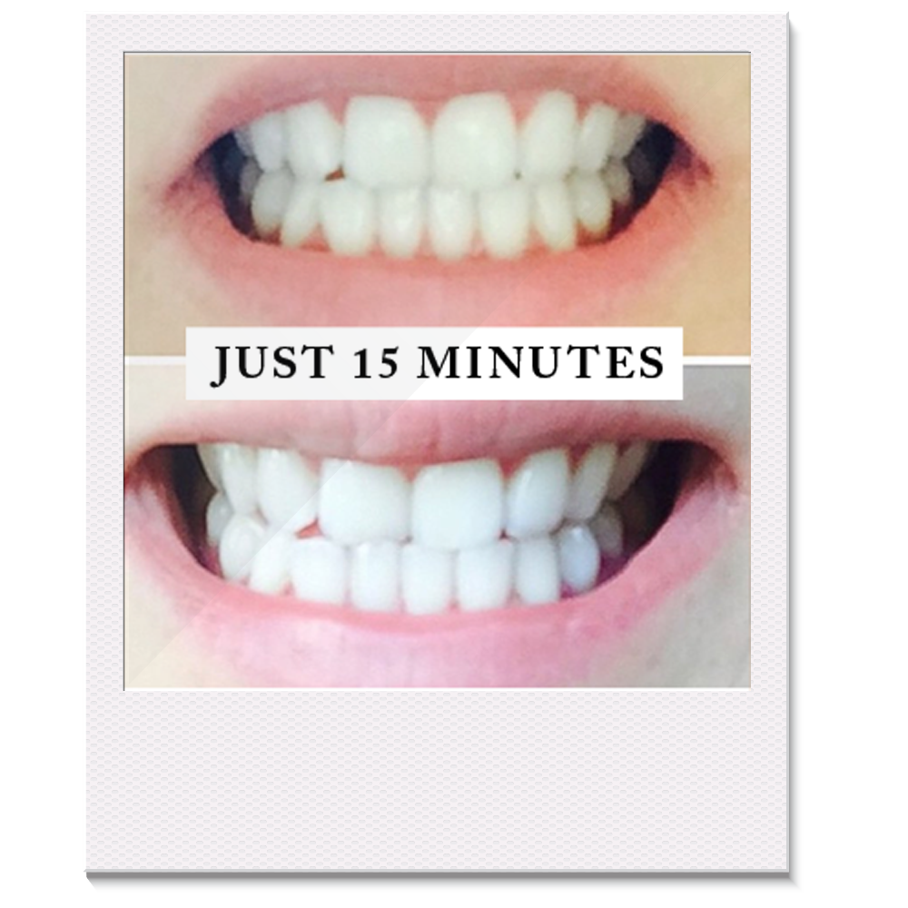 Colgate teeth whitening teeth whitening products pinterest teeth - Pearly Whites Professional Teeth Whitening Kit Best Whitening System
