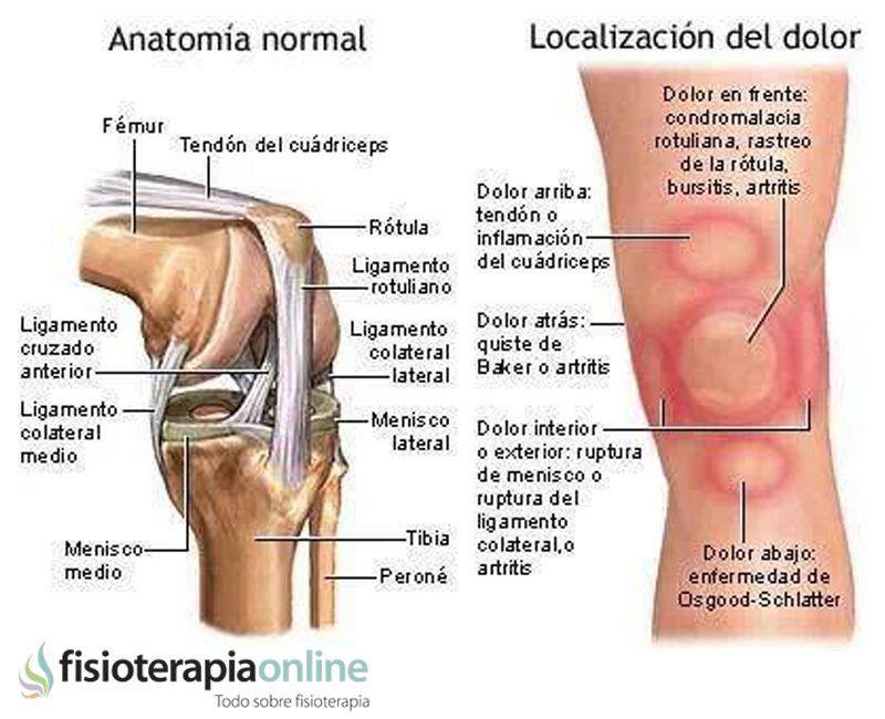 Los patrones del dolor de rodilla o gonalgia y las lesiones mas ...