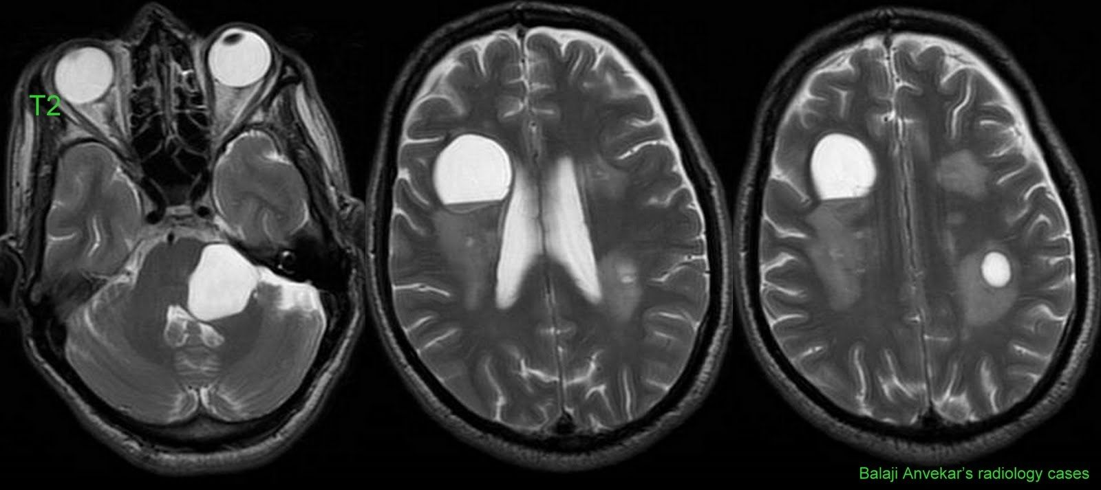 Normal Brain MRI with Contrast - Bing images | Mri Scans