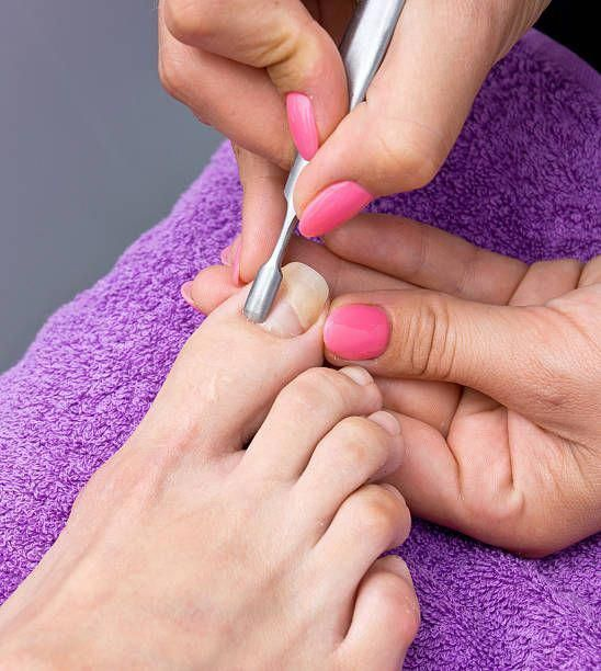 Foot Fungus Cures Best Nail Fungus Treatment Over The Counter ...