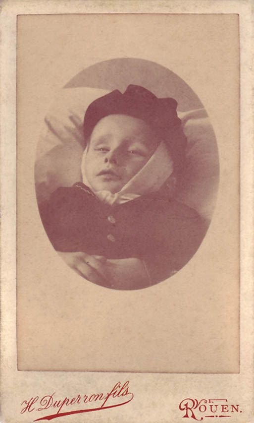 A French carte-de-visite of an infant wearing a black beret with a handkerchief tied under its chin. Due to the processes that the body goes through after death, it was sometimes necessary to tie something around the head of the corpse to keep the mouth shut, at least until rigor mortis had set in.  The photographer is H.Duperron fils of Rouen.
