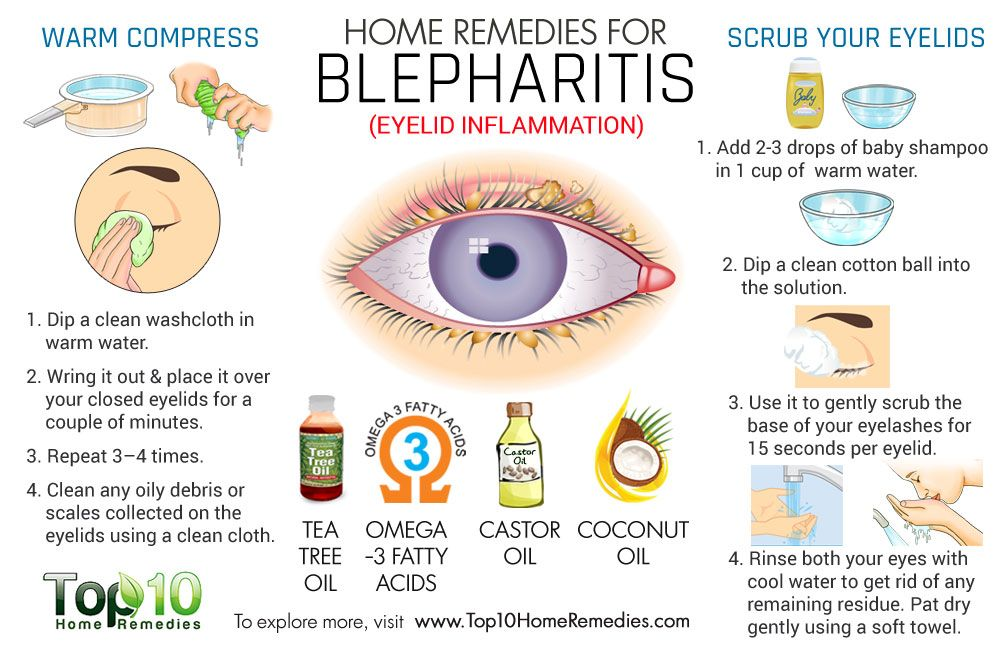 eye inflammation treatment home remedy