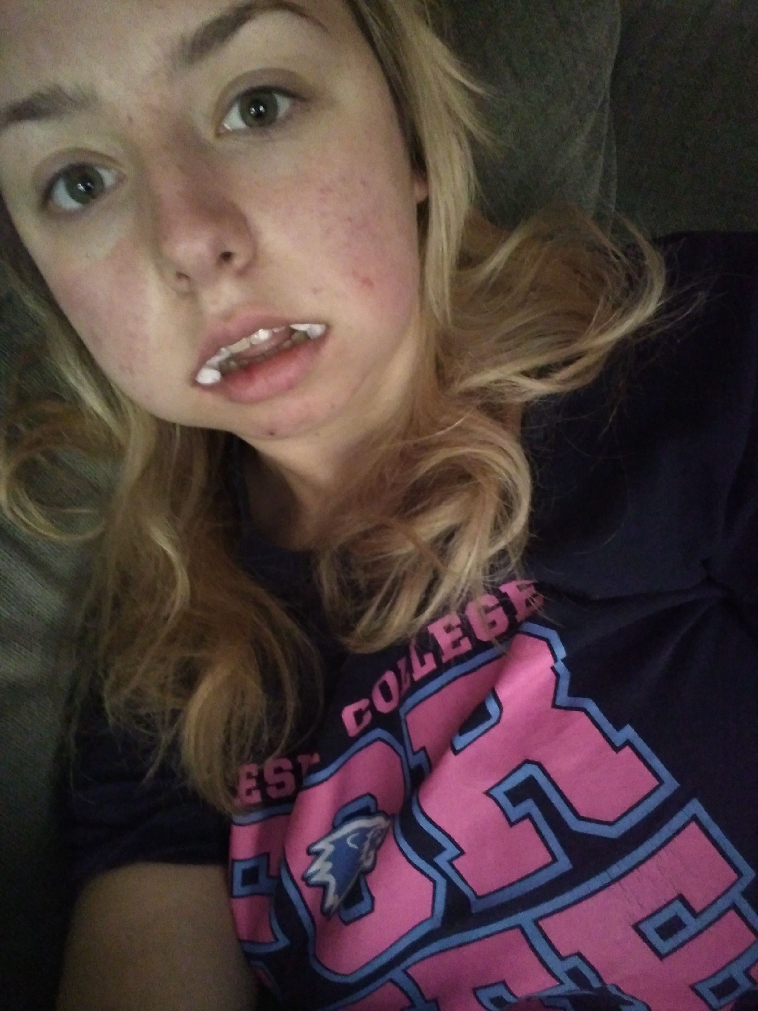 20 Stages of Getting Your Wisdom Teeth Taken Out Wisdom