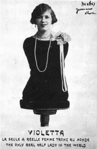 Aloisia Wagner, aka Violetta the Limbless Woman