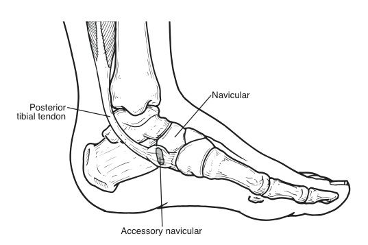 Accessory Navicular Lateral