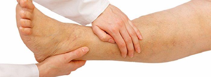 remédios naturais para dvt na perna