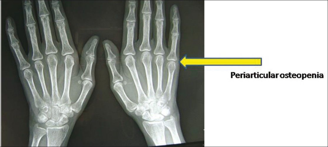 38+ Can osteoporosis be seen on xray ideas