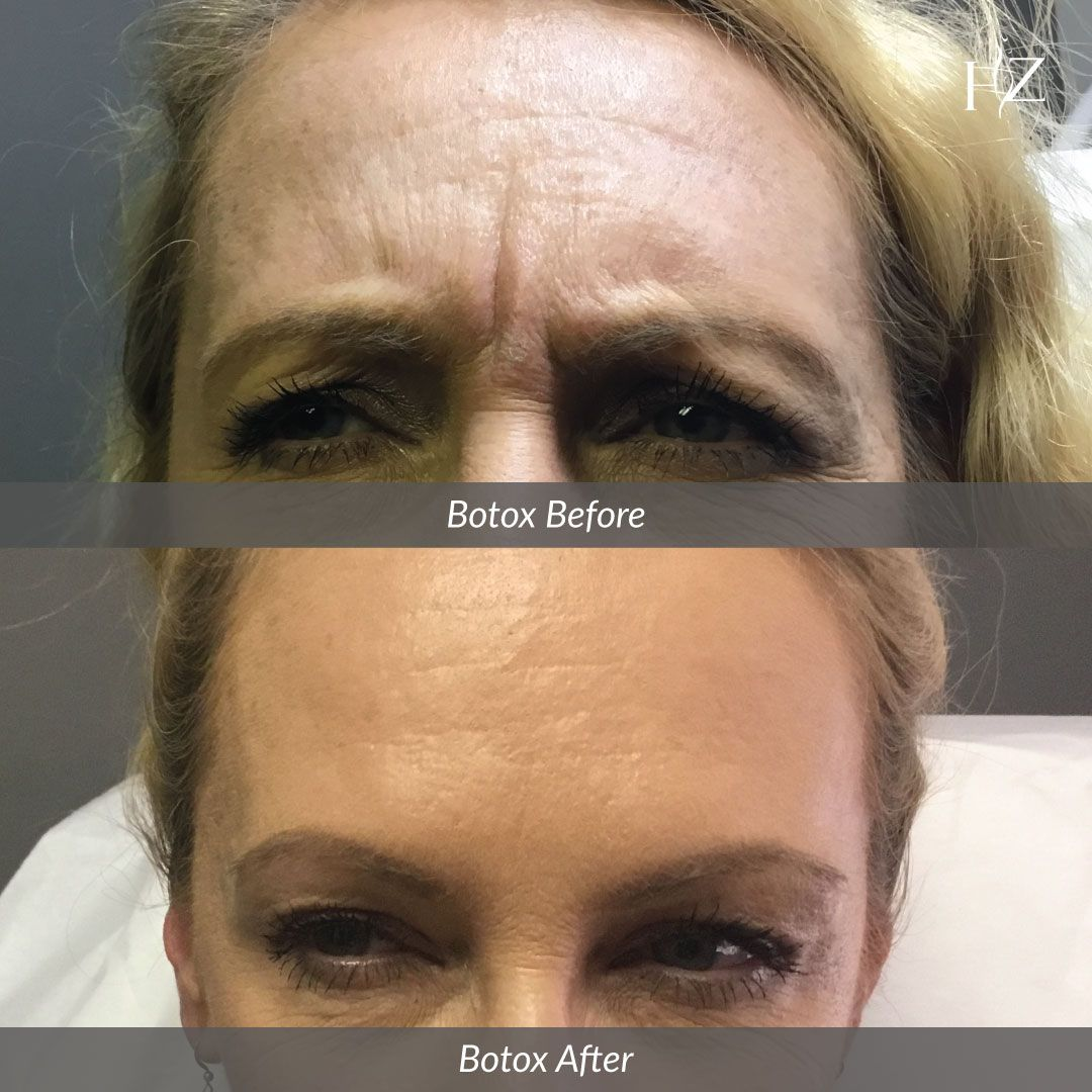 For A Limited Time We Re Offering 20 Free Units Of Botox