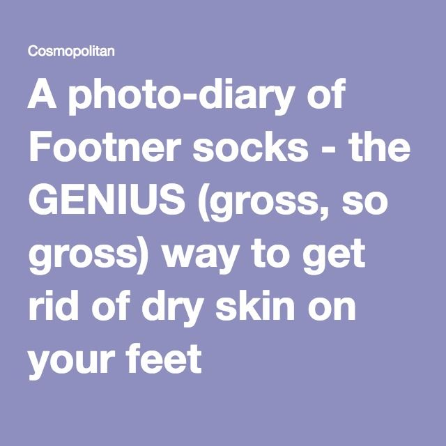 A photo-diary of Footner socks - the GENIUS (gross, so gross) way to get rid of dry skin on your feet