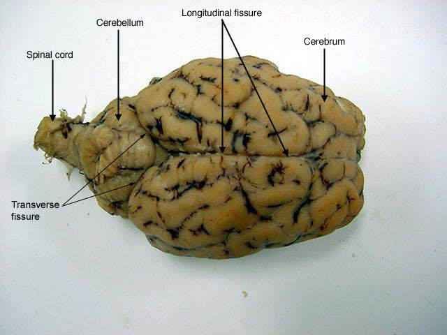 Superior View Of Sheeps Brain Httpclassroommesabbrothers