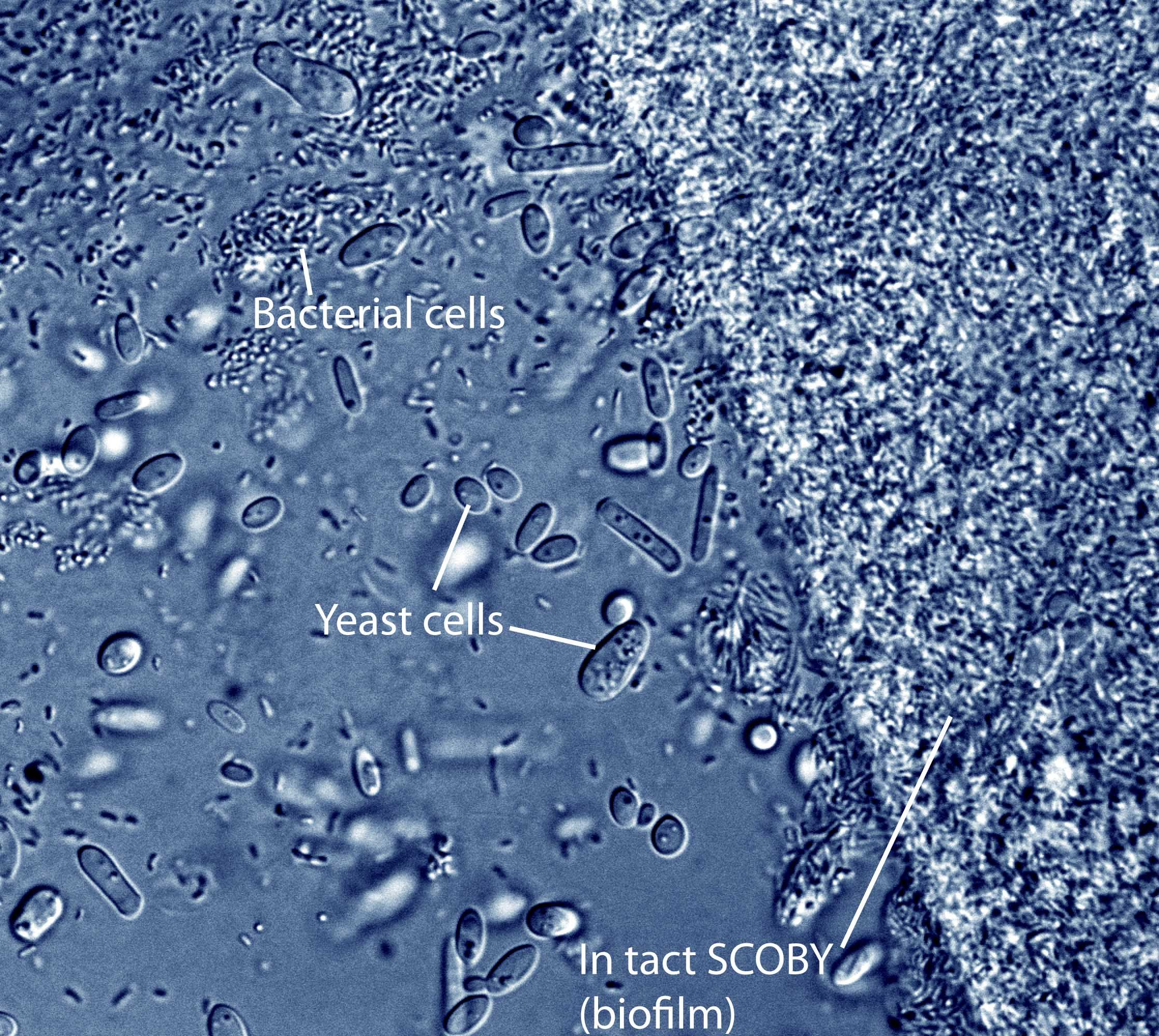 yeast cell 400x - photo #10