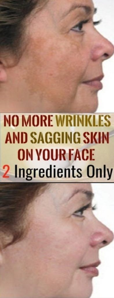 NO MORE WRINKLES AND SAGGING SKIN ON YOUR FACE – 2 INGREDIENTS ONLY #geniusmomtricks