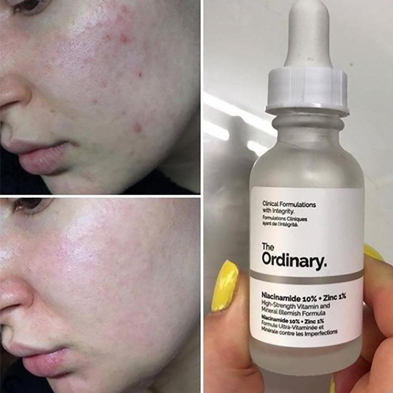The Ordinary Niacinamide 10 Zinc 1 30ml Theordinaryniacinamidezinc In 2020 The Ordinary Niacinamide Face Serum Exfoliate Face