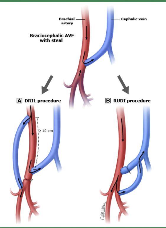 The Avf As A Continuous Circuit Dialysis Access Pinterest Dialysis
