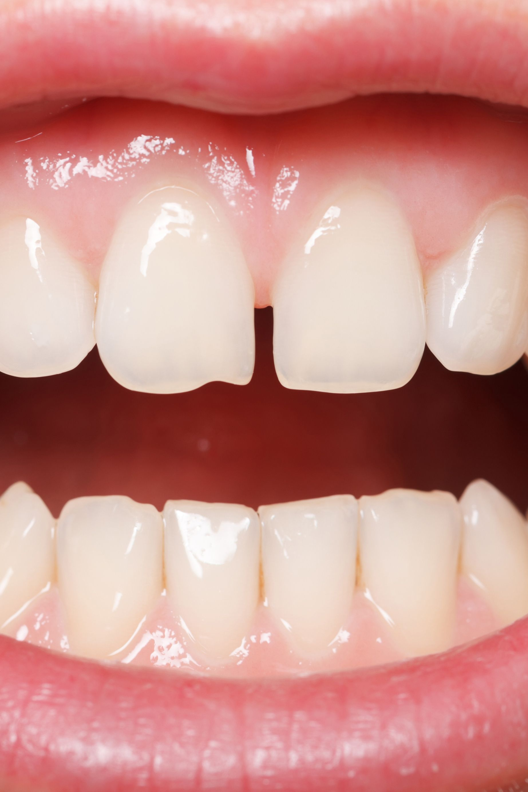 Treatment for Chipped Teeth Freehold, NJ Cosmetic