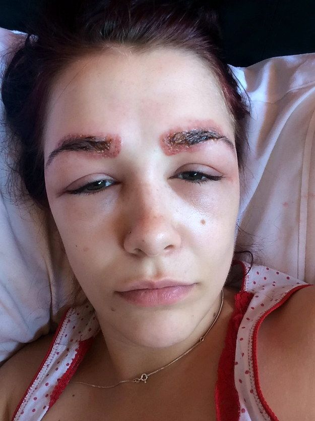 This Teen Tried To Get Perfect Eyebrows And Ended Up With A