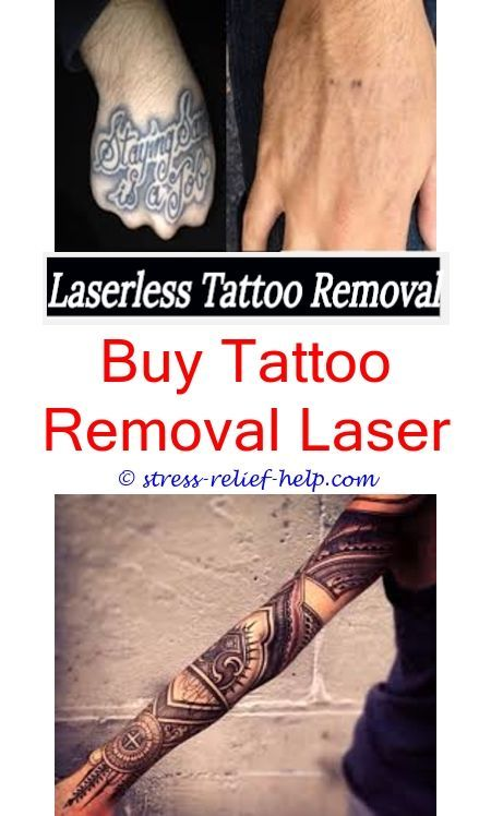 black tattoo removal does tattoo removal work - can bleaching cream ...