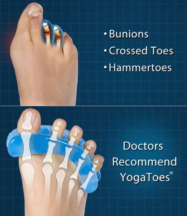 Attain Proper Foot Health With Yoga Toes (With images) | Foot ...