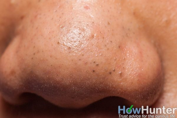 how to get rid of nose acne fast