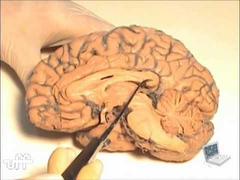 Neuroanatomia: anatomia cerebral 1 | Brain | Pinterest | Anatomía y ...