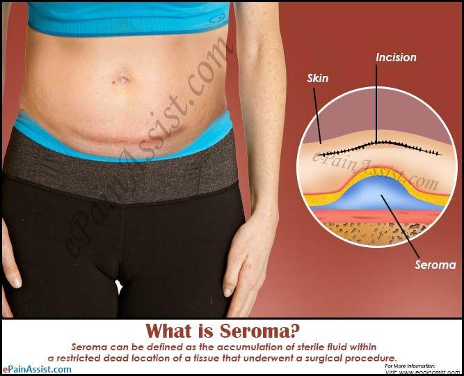 What is Seroma | Health | Health, beauty, Health, Medical
