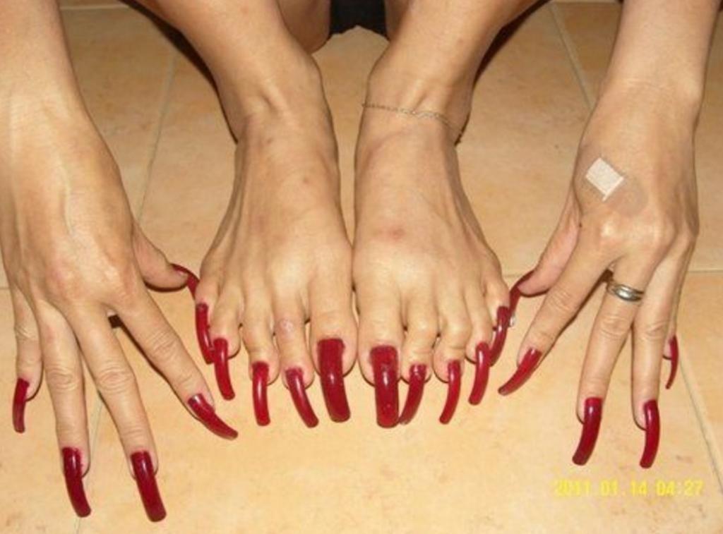 12 fotos de las peores uñas de los pies en el mundo. La cuarta es ...