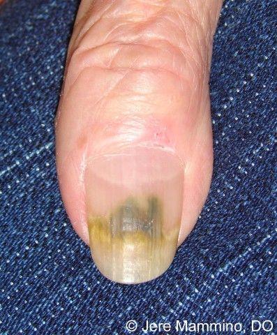 Green Nail Syndrome Green Nail Syndrome Green Nails Green Toe Nails