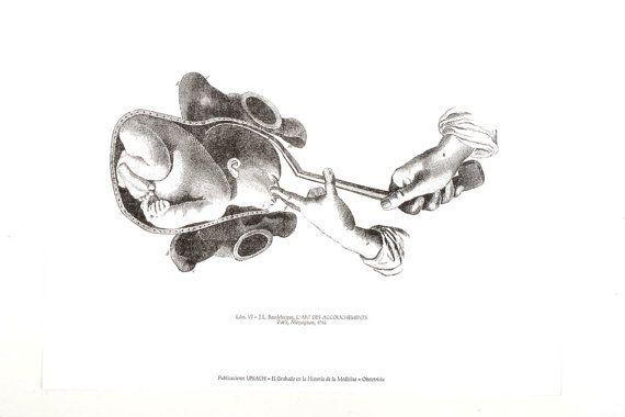 Childbirth, Uterus, labor print, preganncy anatomy, pregnancy print ...