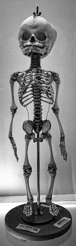 Infant Skeleton | Flickr - Photo Sharing!