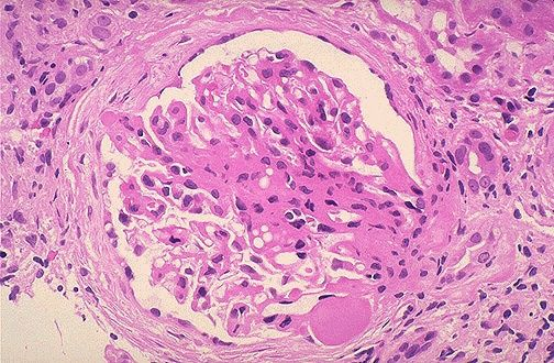 fsgs   m c  nephrotic in aa u2026can have nphs1 or 2 mutations