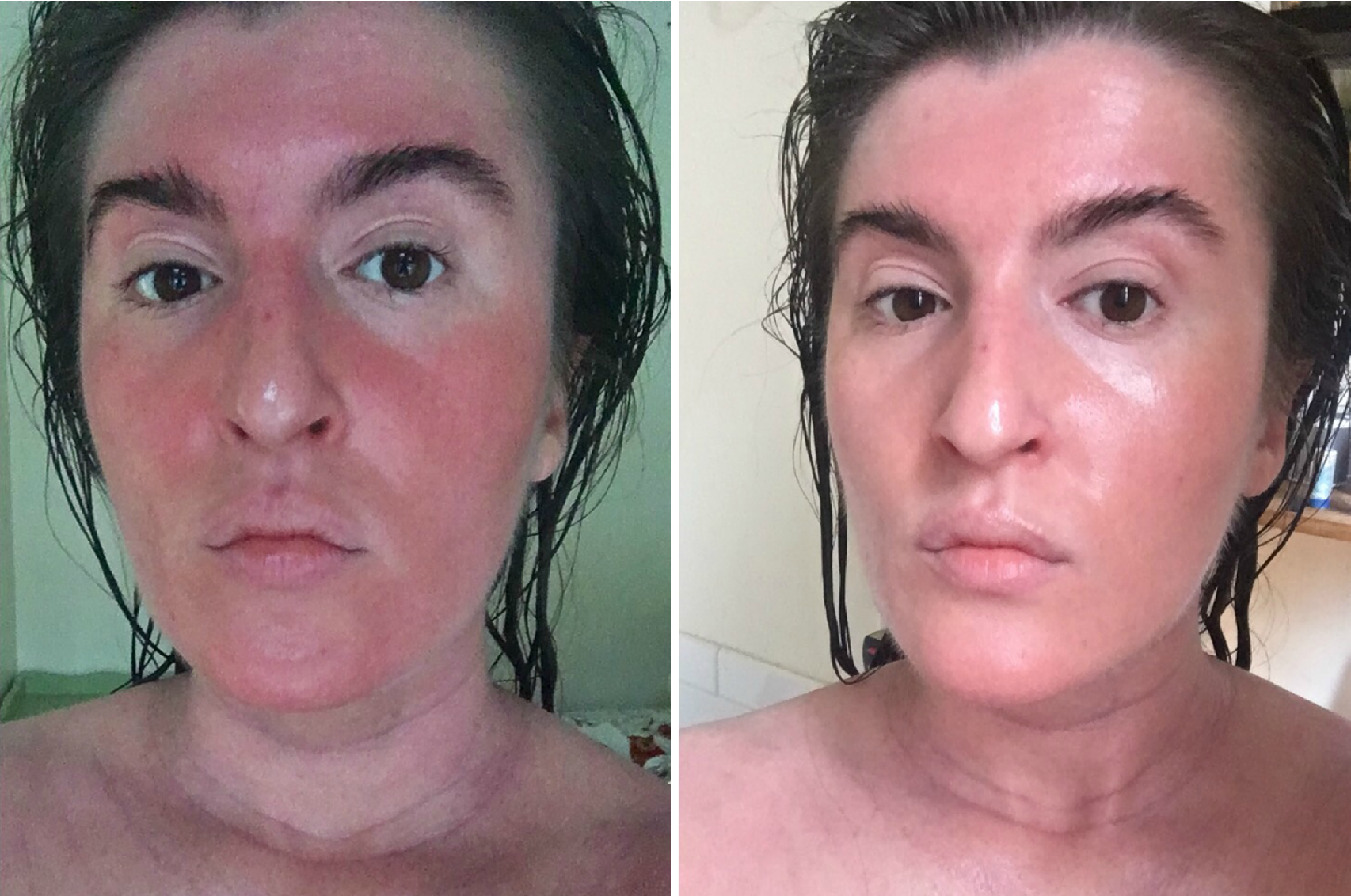 I Tried A Korean Skin Care Routine For A Month Before And After Photos Allure Koreanskincareproducts Korean Skincare Routine Skin Care Simple Skincare