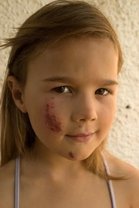 Healing Scabs on Your Face | Health | Scab on face, Scab healing