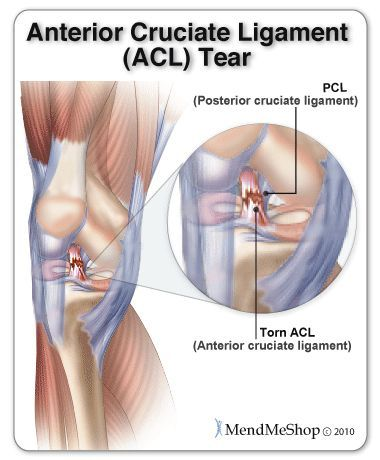 Knee Injury Acl Tear Health Pinterest Acl Tear Knee Injury And Acl