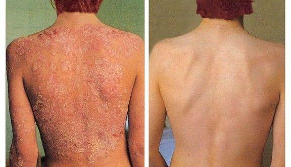 Псориазис. Лечение на псориазис
