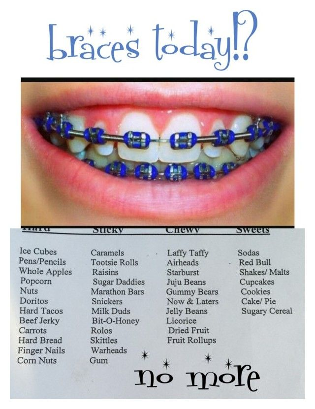 I M Getting Braces Today Braces Tips And Stuff Dental