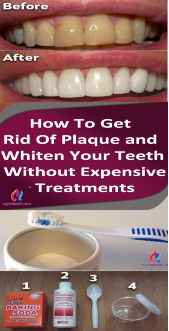 How To Get Rid Of Dental Plaque And Whiten Your Teeth Without Expensive Treatments Checked And Proved Briliant Lif How To Get Rid Dental Plaque How To Get