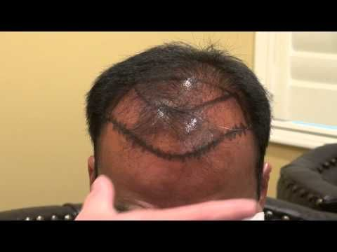 Man Bald Hair Loss Treatment Dr. Diep www.mhtaclinic.com Los Gatos Near San Jose Califiornia -  How To Stop Hair Loss And Regrow It The Natural Way! CLICK HERE! #hair #hairloss #hairlosswomen #hairtreatment Man bald hair loss surgery t   reatment by hair transplant restoration surgery by Dr. Diep by FUE or FUT at 866-999-6482 at  treating male pattern baldness, bald head, frontal balding,... - #HairLoss